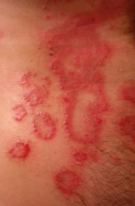 Neurodermitis kann unschöne Narben zur Folge haben.